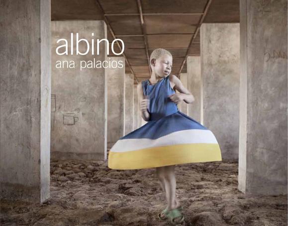 Albino, una exposición y un libro para concienciar