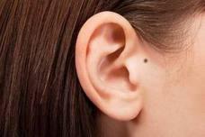 Dime qué forma tiene tu oreja y te diré qué enfermedades tendrás