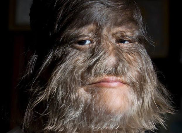 La mujer más peluda del mundo se afeita para casarse y este es el resultado
