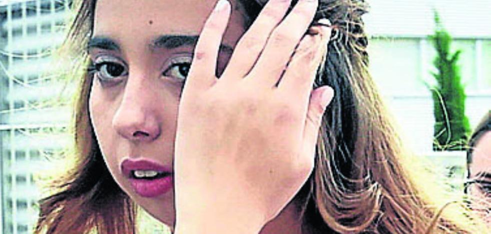 Una chirigota ridiculiza el aspecto de Andrea Janeiro