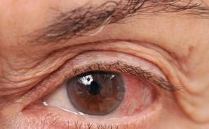 La enfermedad silenciosa que puede dejar ciegos a casi 1.000 murcianos