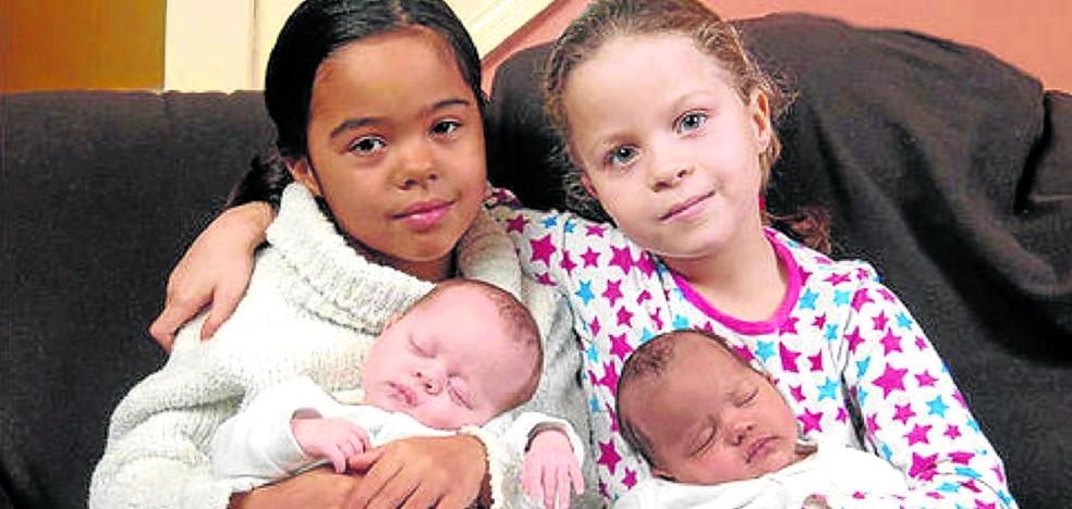El increíble caso de las gemelas bicolores