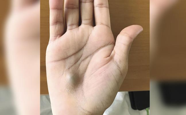 Un hombre visita al dentista y le aparece un extraño bulto en la mano