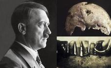 ¿Tienen los rusos el cadáver de Hitler?