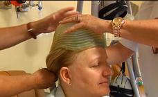 Inventan un casco que evita que se caiga el pelo con la quimioterapia contra el cáncer