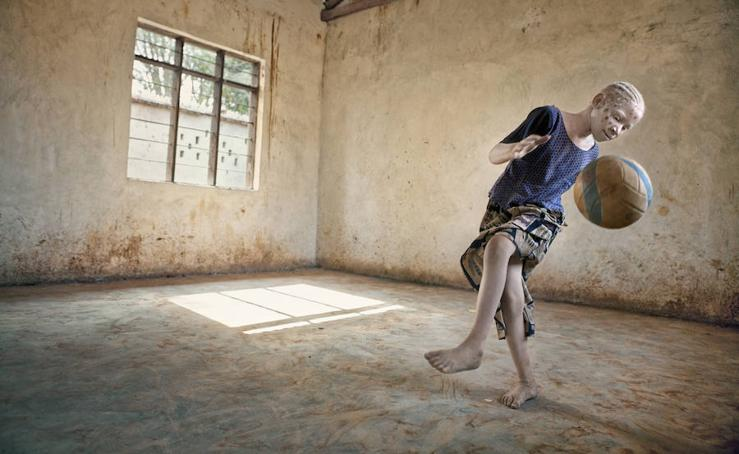 'Albino', exposición fotográfica