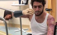 Davide Morana muestra sus progresos con sus nuevas manos biónicas