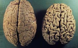 La Arrixaca estudia si la dieta vegetariana puede frenar el desarrollo del alzhéimer