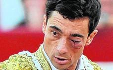 El torero Paco Ureña, pese a salvar el ojo izquierdo, no recuperará la visión