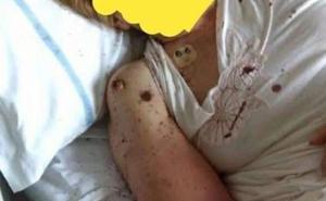Encuentran a una paciende cubierta de hormigas en un hospital de Nápoles