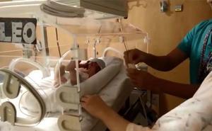Los partos prematuros aumentan al tiempo que lo hacen las posibilidades de supervivencia