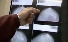 Condenan a un centro médico de Cartagena por el retraso mortal en un diagnóstico de cáncer de mama