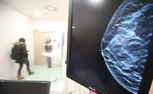 Investigan a un empleado de una unidad de mamografías por hacer «tocamientos inadecuados»