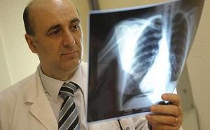 Una nueva esperanza contra el cáncer de pulmón
