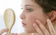 Los alimentos que no debes comer si tienes acné