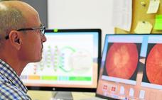 La UPCT estudia el diagnóstico del glaucoma con inteligencia artificial