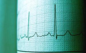 La UMU detecta una proteína en la sangre que puede predecir el riesgo de ictus