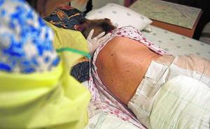 Nueve afectados por un brote de sarna en una residencia de personas mayores de Ceutí