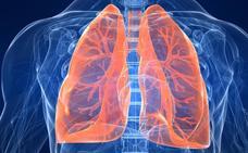 Científicos españoles crean una prueba no invasiva para detectar y personalizar el tratamiento de la fibrosis pulmonar