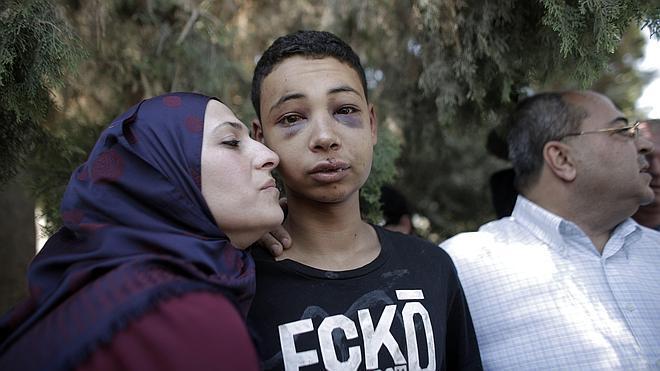 Policías israelíes linchan a un primo del palestino quemado vivo