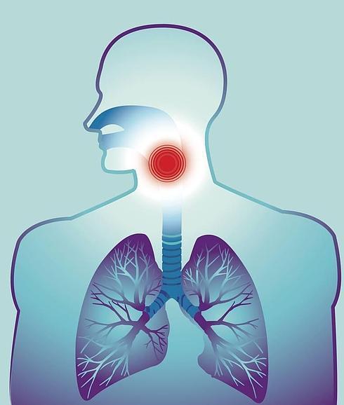 pólipos en las cuerdas vocales y laringitis crónica